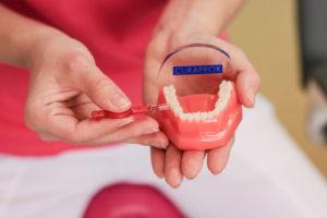 Veronika Kvěťáková - Dentální hygiena